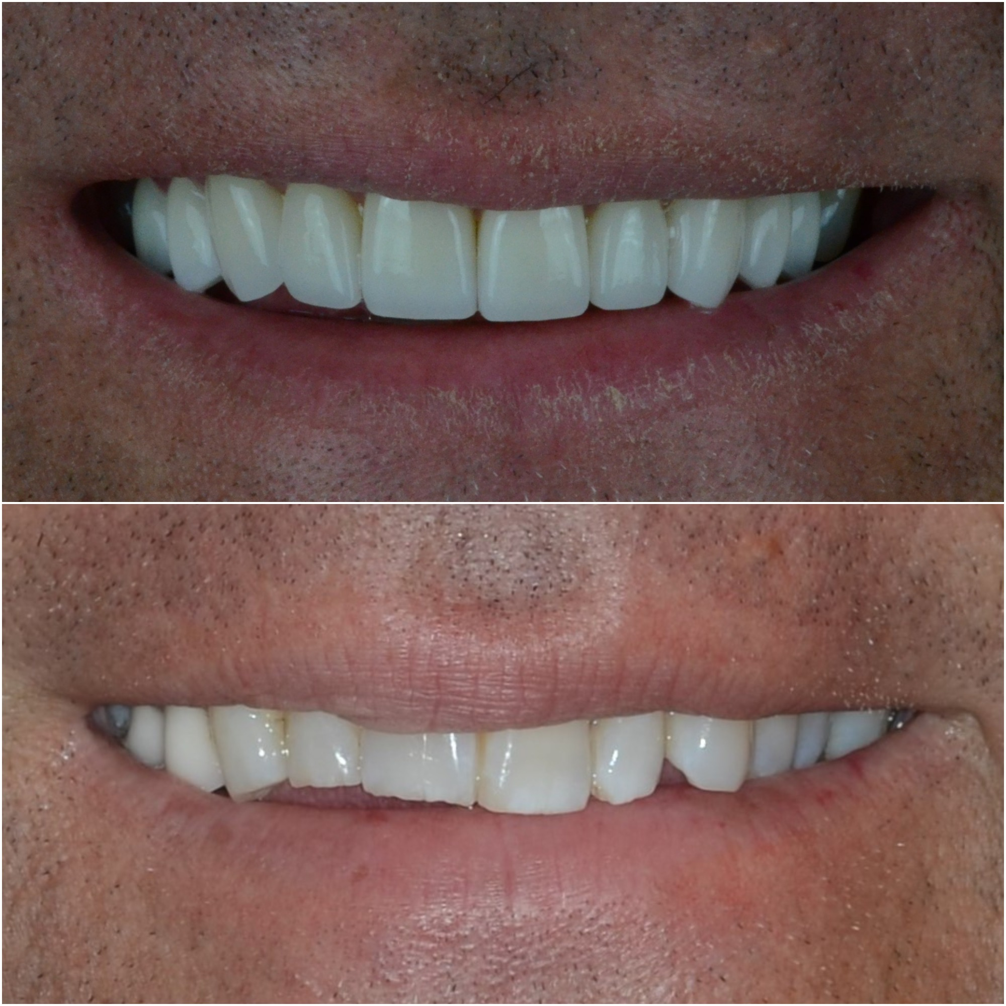 Ten dental crown and veneers