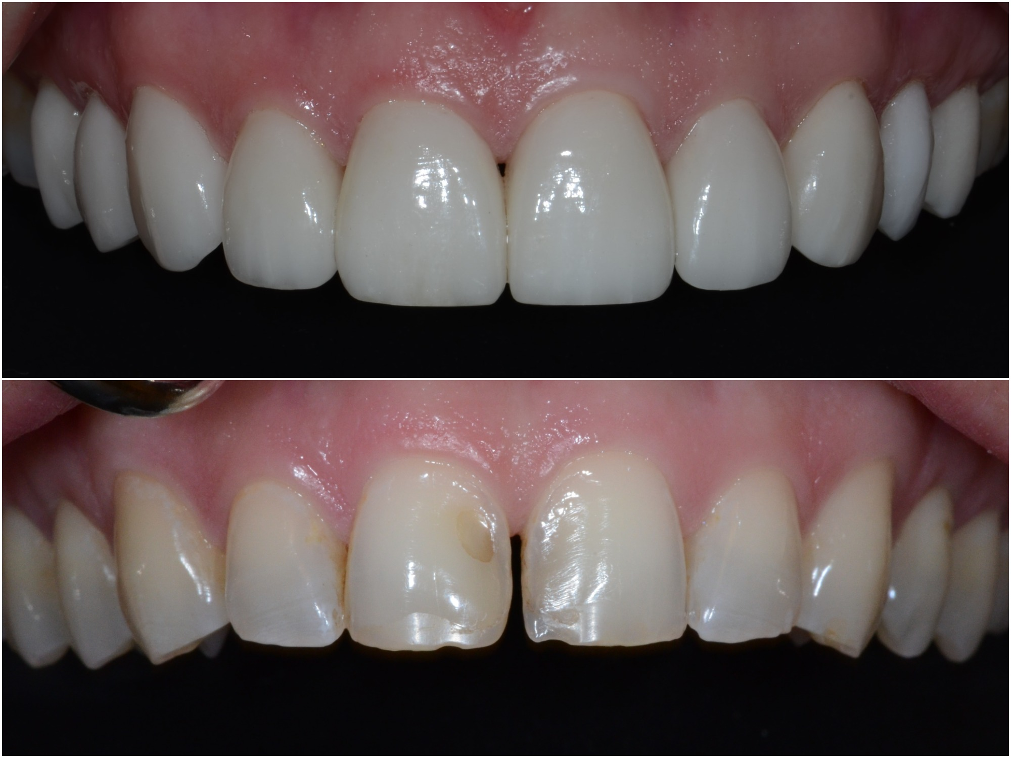 Ten dental veneers