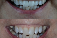 Two dental crowns