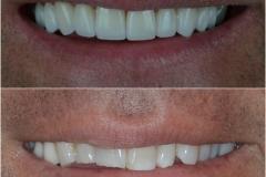 Ten dental crown and veneers