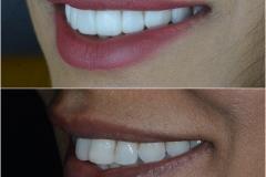 Ten dental veneers